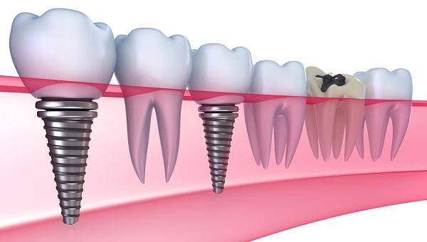 Model implantów zęba
